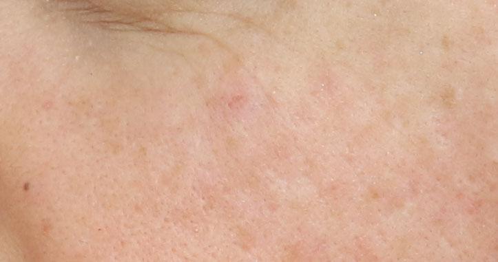 Cicatrice d'acné après traitement par acide hyaluronique