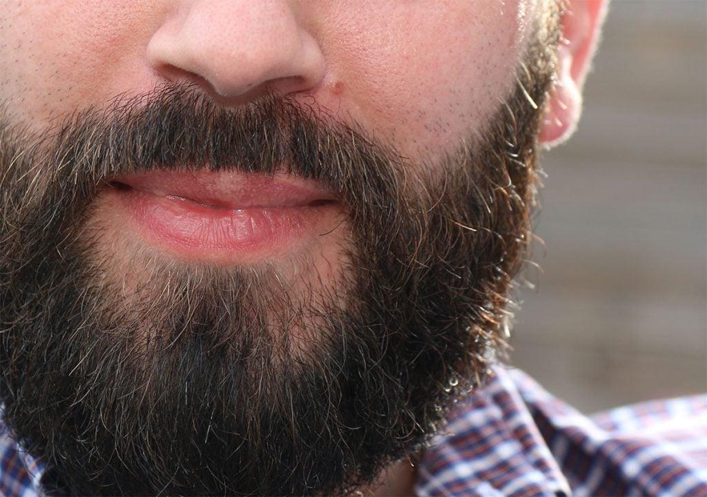 Greffe de barbe à Lille Villeneuve d'Ascq par le Docteur Sar, résultat à 1 mois