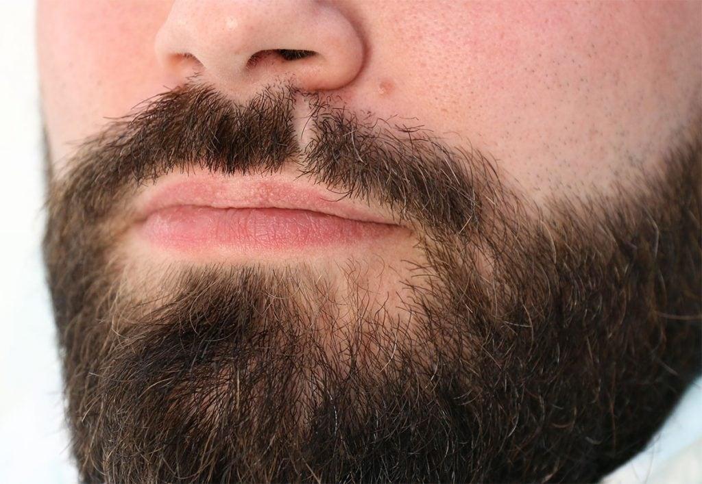 Greffe de barbe à Lille Villeneuve d'Ascq par le Docteur Sar