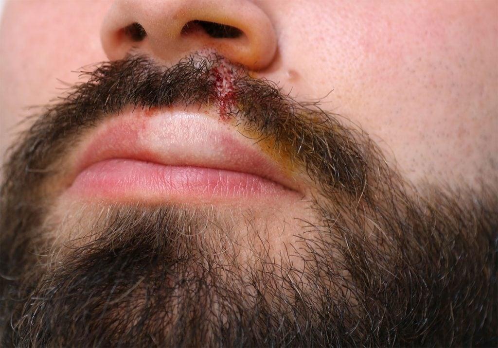 Greffe de barbe à Lille Villeneuve d'Ascq par le Docteur Sar, vue de la zone greffée après intervention