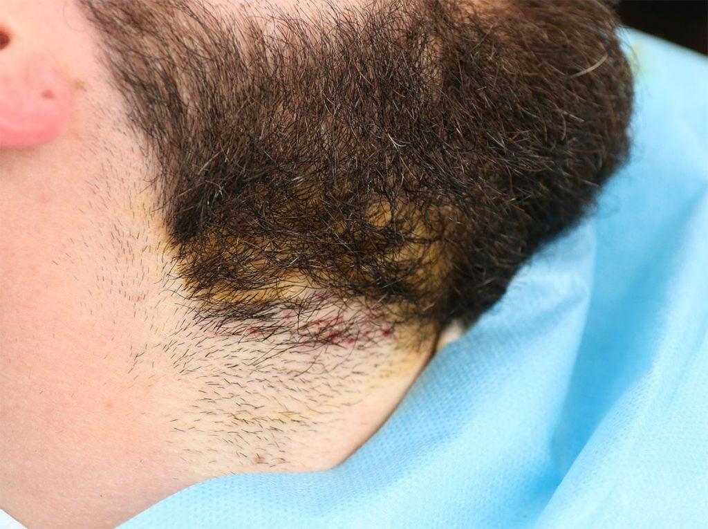 Greffe de barbe à Lille Villeneuve d'Ascq par le Docteur Sar, vue de la zone donneuse
