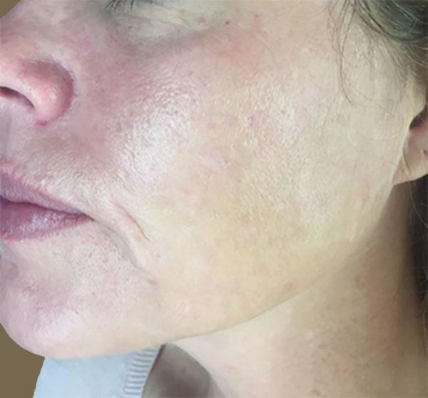 Traitement du visage par micro needling à Lille Villeneuve d'Ascq