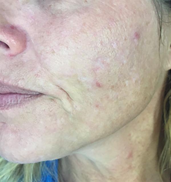 Micro needling traitement du visage à Lille Villeneuve d'Ascq