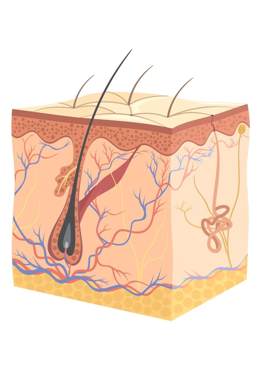 Coupe de la peau pour illustration de peeling