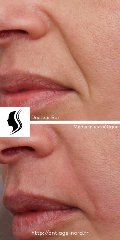 Photo de sillon nasogénien avant et après injection d'acide hyaluronique