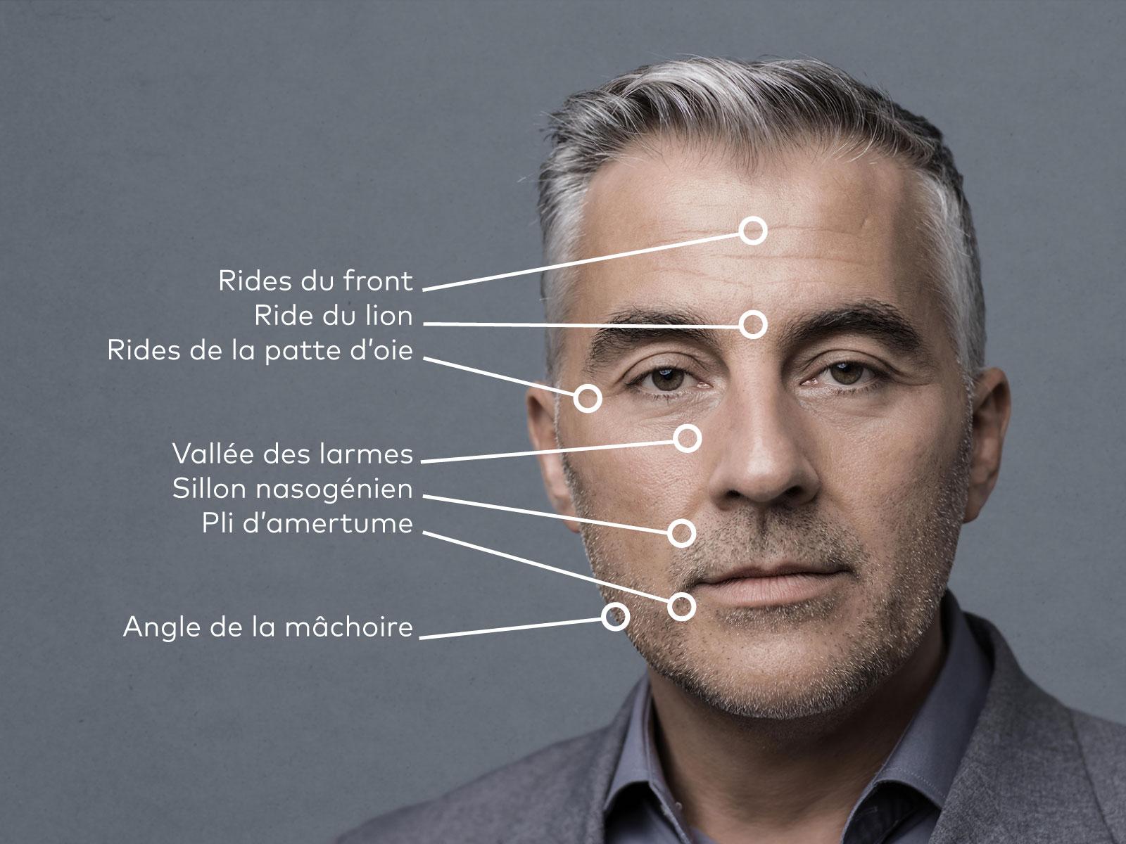 Lexique des termes anatomiques utilisés en médecine esthétique pour un homme