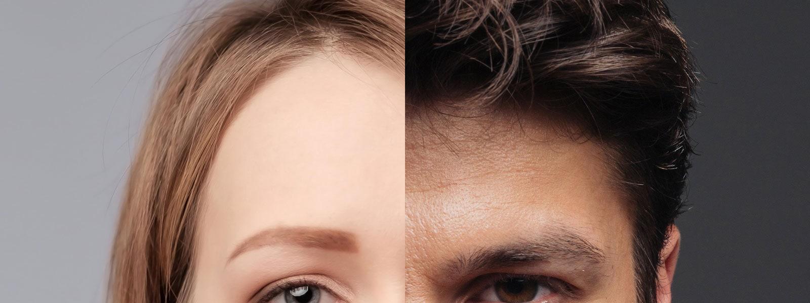 Comparatif homme femme tiers supérieur du visage