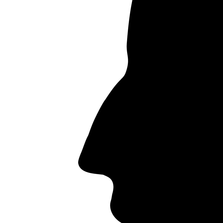 Nez de profil après rhinoplastie médicale