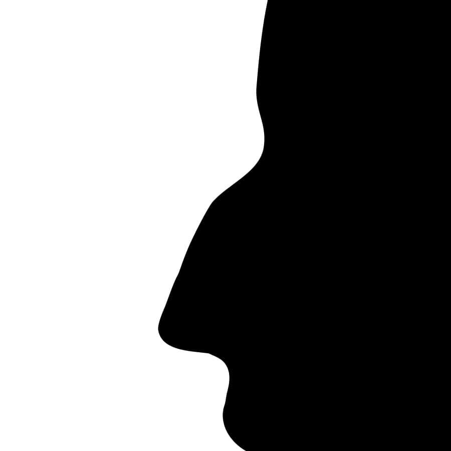 Nez de profil avant rhinoplastie médicale