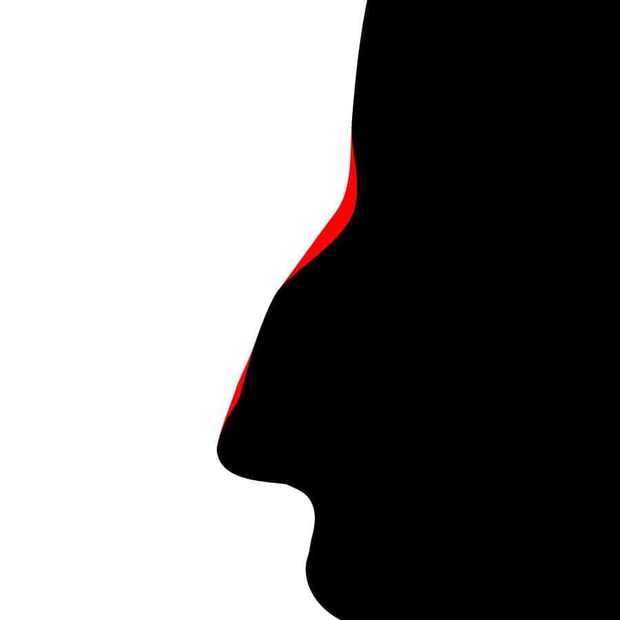 Nez de profil comblement par injection d'acide hyaluronique